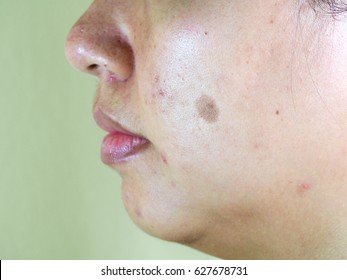 Melasma on woman face, acne on the face, facial scar, melasma skin