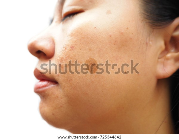melasma on woman face, facial scar,  skin, skin problem, beauty concept