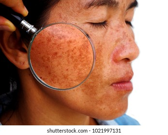 Melasma on woman face, skin problem