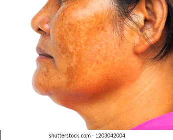 Melasma on woman face, Woman skin problems