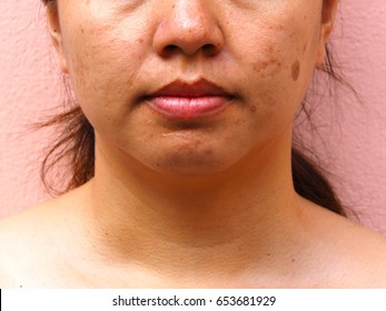 Melasma on woman face,scar acne on face, facial scar, melasma skin, skin problem, beauty concept