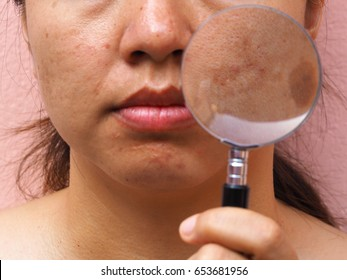 Melasma skin with magnifying glass on woman face, facial scar, melasma skin, skin problem, beauty concept