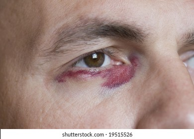 Men with black eye