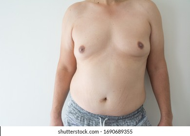 men boob with belly fat on fat man