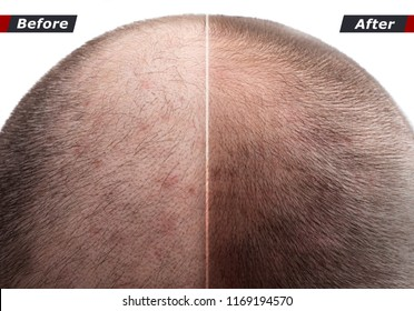 Men hair after using cosmetic powder, cream, spray to thicken hair. Before and after