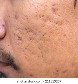Men are pitted facial acne