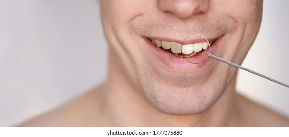 Men smile. Male smiling person. Whitening oral care concept. Teeth before and after. Laughing mounth. Yellow to white color