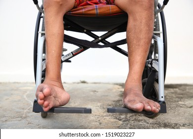 Men who suffer from polio Having small legs without strength Must sit in a wheelchair for convenience in movement.