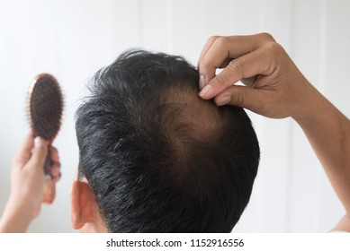 Men are worried about hair loss.