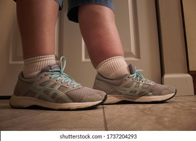 Menomonee Falls, WI / USA - May 15, 2020: A woman with lymphedema compares her normal leg to her swollen leg, which is caused by a lymphatic system blockage.
