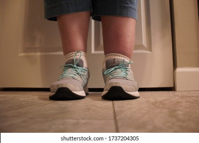Menomonee Falls, WI / USA - May 15, 2020: A woman compares her left leg to her right leg that is affected by lymphedema. Exercise and compression helps the swelling in her leg's lymphatic system.
