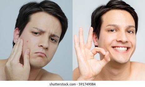 men's pimple treatment before after image