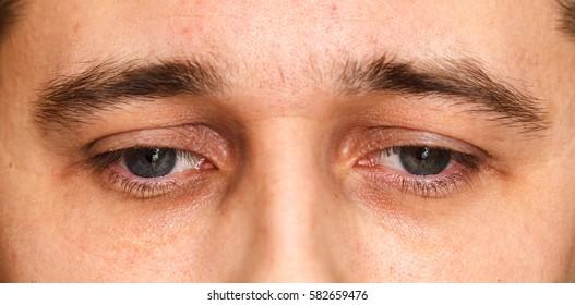 Sad Eyes Images Stock Photos Vectors Shutterstock