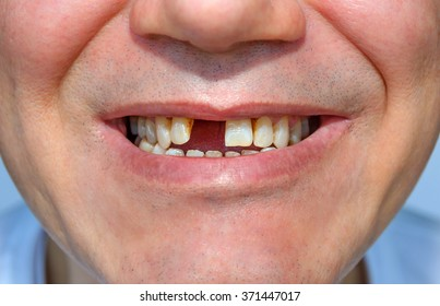 Men's smile without tooth. fragment of face