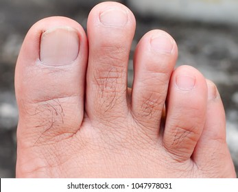 Mens Toes Healthy Toe Nails