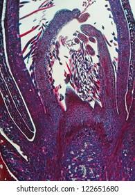 Meristem growing tip of Prunus sp.  Magnification 100X