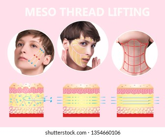 Meso thread Lift. Young female with clean fresh skin. Beautiful woman. face and neck. Lifting by threads concept. Collage