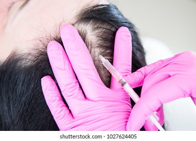 Mesotherapy for Hair Loss. Woman's head with gloves holding syringe with needle