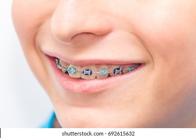 Metal braces in the child mouth