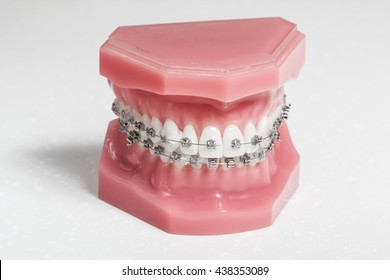 Metal brackets - tooth aligners on a model jaw, white background