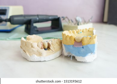 metal ceramic dental crowns on artificial gypsum models at the dentist office