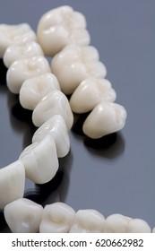 Metal ceramic teeth and bridges.