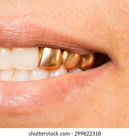 metal teeth in the mouth