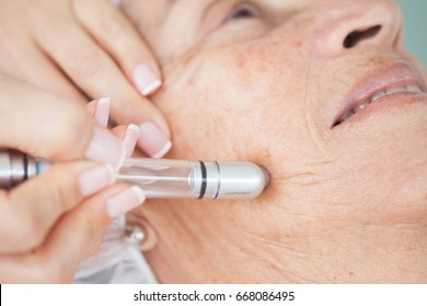 Microdermabrasion treatment on a senior woman face