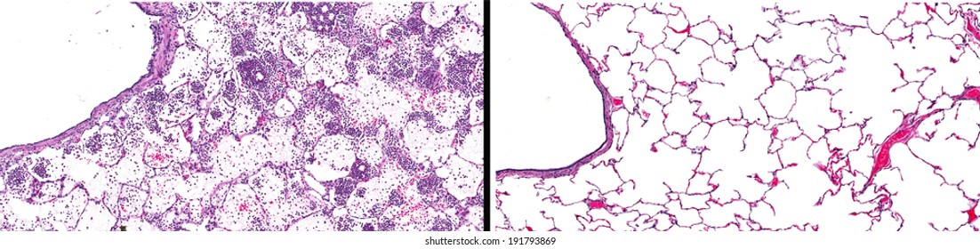 Microscopic image of lung with acute pneumonia (left) with leukocytes in pulmonary tissue compared to normal healthy lung (right) with clean open alveoli.