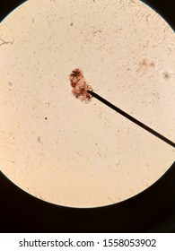 Microscopic  mite from human skin, Demodex folliculorum
