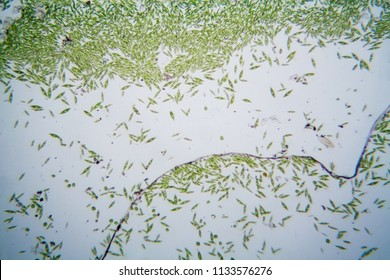 Microscopic organisms from the pond. Euglena Gracilis