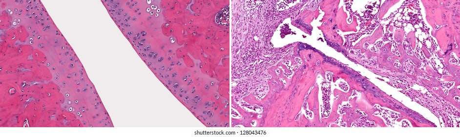 Microscopic view of normal healthy joint (left) when compared to joint with osteoarthritis with loss of articular cartilage, fibrosis, inflammation and loss of bone (right).