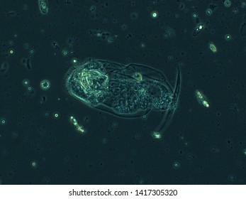 Microscopy of a drop of water in a dark field rotifer