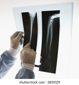 Mid-adult Caucasian male doctor pointing at an x-ray.