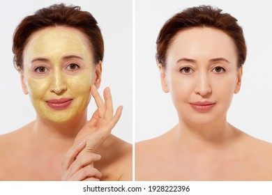 Middle age closeup woman face before after beauty mask treatment. Before-after wrinkled skin. Summer anti aging collagen mask on woman wrinkle face isolated. Mid aged facial skincare. Menopause period