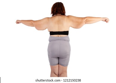 Middle aged woman with sagging excess arm skin extreme weight loss. Inspiration for poster and meme, before brachioplasty, panniculectomy, abdominoplasty and mummy makeover in Australia.