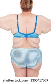 Middle aged woman with sagging excess arm skin after extreme weight loss. Before brachioplasty, panniculectomy, abdominoplasty and mummy makeover. Back view arms out with bingo wings.