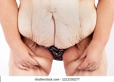 Middle aged woman with sagging skin after babies and extreme weight loss. Inspiration for poster and meme, before brachioplasty, panniculectomy, abdominoplasty and mummy makeover in Australia.