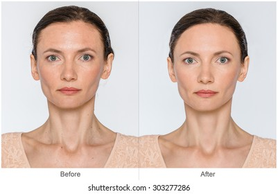 Middle aged Woman with and without aging singes, wrinkles, blemishes, mole. Before and after cosmetic or plastic procedure, anti-age therapy