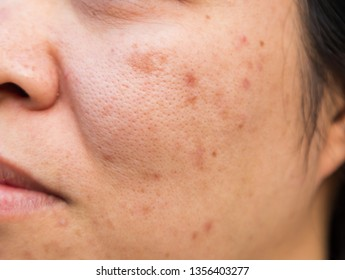 Middle-aged female adults, aged 40s, of national origin in Asia, have problems with facial skin, namely acne, and melasma or blemishes.