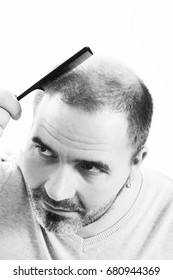 Middle-aged man concerned by hair loss bald baldness alopecia black and white, on white background