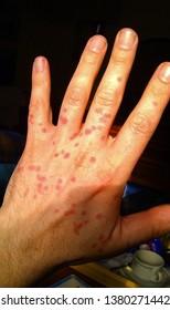 Midge bites on a male caucasian hand