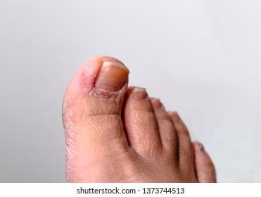 mild case if athletes foot.