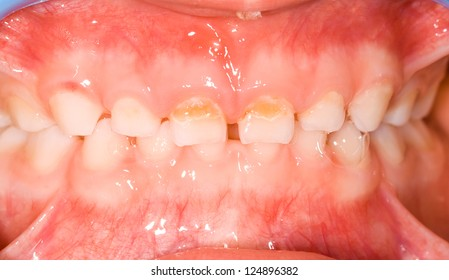 Milk teeth in childhood denture, caries in frontal tooth