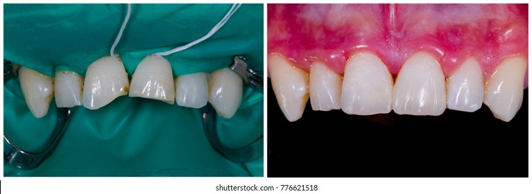 Mimicking nature - regaining aesthetics and function on broken central incisors.