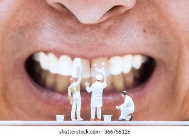Miniature people painting on teeth.