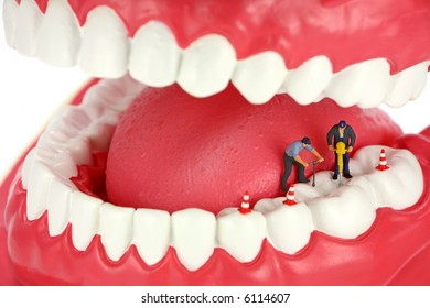 Miniature workers drilling a tooth. Dental concept.