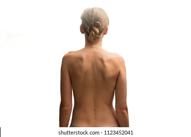 Misalignment of the hip illustrated by the back view of a woman