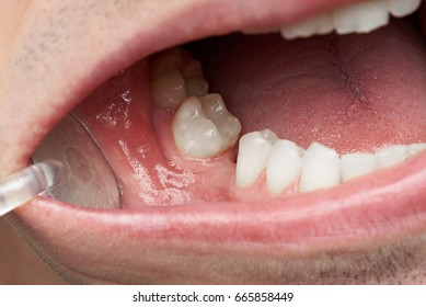 Missing tooth in man mouth close-up. Dentist checking missing teeth
