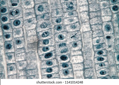 Mitosis cell of root tip onion under microscope for biological education